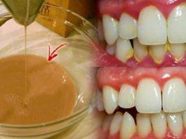 Мощная домашняя жидкость для полоскания рта: устраняет бактериальный налет и отбеливает зубы