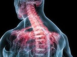 Мышечные зажимы шеи и спины: полное снятие боли изменением позы