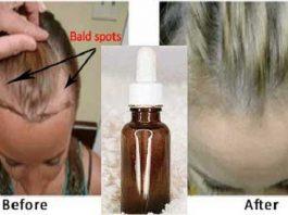 Нанесите несколько капель сыворотки и Ваши волосы отрастут совсем незаметно