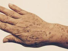 5 средств для 100% устранения пятен и морщин на руках