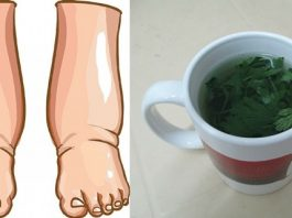 Самое мощное природное средство для лечения отека ног