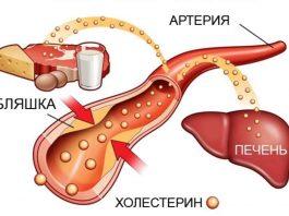 Три простых продукта, отлично снижающие холестерин