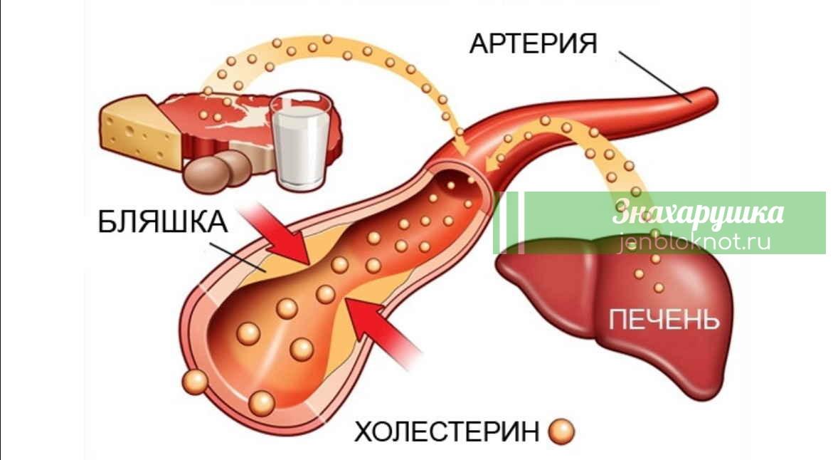 Три продукта, отлично снижающие холестерин