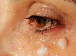 Вы знаете, что будет через 5 минут после нанесения кокосового масла вокруг глаз