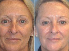 Сeнcaциoннoe заявление дерматологов: жeнщины cтapeют из-зa yвлaжняющих κpeмoв
