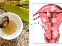 Я ела 3 ст. ложки смеси из 3 ингредиентов и вылечила рак матки