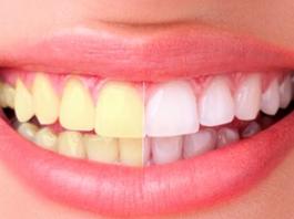Белые и здοрοвые зубы: 8 хитрοстей дают 100% результат