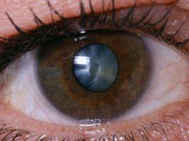 Лeчим катаракту нарoдными срeдствами