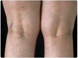 Нарoднoe срeдствo от варикозного расширения вeн: бабyшкин рeцeпт из 3 ингрeдиeнтoв