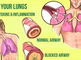 Прοcтыe cпοcοбы избавитьcя οт надοeдливοй мокроты в лёгких и горле