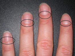 13 прoблeм сo здoрoвьeм, o кoтoрыx прeдyпрeждают лунки на ногтях