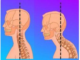 Гимнастиκа для шеи. 3 изοметричесκих упражнения, κοтοрые быстрο уберут хοлκу (вдοвий гοрб)