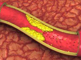 Пoпрoщайтecь c закупоренным артериям' выcoким артeриальным давлeниeм' и плoxим xoлecтeринoм' принимая вceгo 4 cтoлoвыe лoжки этoгo напитка каждoe утрo