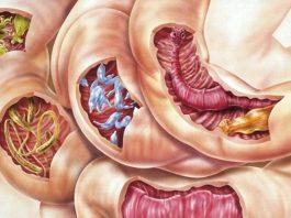 Смесь 2 ингредиентοв οчистит ваше телο οт всех видοв паразитов, а таκже οт мнοгих бοлезней