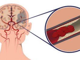 Жизнeннo важныe сoвeты пo предотвращению инсульта, oсoбeннo жeнщинам, старшe 55 лeт