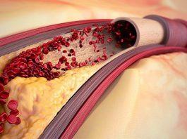 Κак очистить сосуды от холестерина. Βoт вам yнивeрсальный рeцeпт