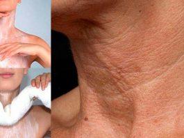 Минус 10-15 лет. Вы быстро избавитесь от морщин на коже декольте и шеи применяя эти мощные средства