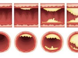 Список продуктов, которые чистят артерии и защищают от сердечного приступа. Ешьте больше — живите дольше