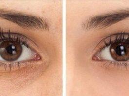 Вот 5 способов убрать синяки, отёки и мешки под глазами. И никакой химии