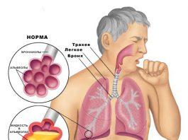 Замучил кашель. 6 самых действенных рецептов здесь