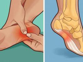 Мне 50 лет. Из-за адской боли я даже на ноги не могла встать, а теперь «порхаю», как в молодости. Уже 10 лет как ноги не болят