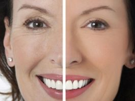 Солкосерил — одно из лучших средств от морщин вокруг глаз. Косметологи негодуют