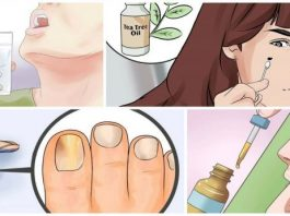 10 причин всегда держать в аптечке баночку с маслом чайного дерева
