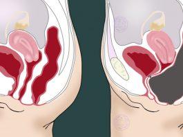 8 способов выгнать токсины из толстой кишки. Так делают все врачи