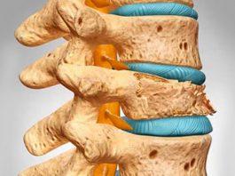 Доктор рекомендует: этот плод предотвратит потерю костной массы, ожирение, запоры и остеопороз