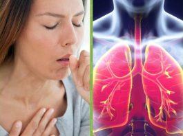 Как начинается пневмония: 6 опасных признаков