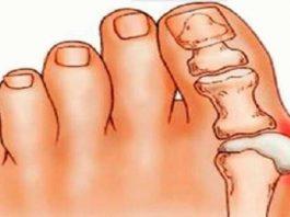Косточки на ногах: эти 4 натуральных средства эффективно выведут соли и быстро избавят от боли