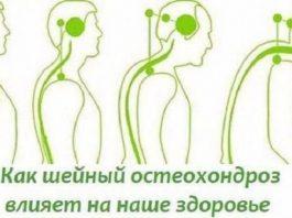 ПРОВЕРЯЕМ ШЕЮ. Как уберечься от шейного остеохондроза и как он влияет на наше состояние