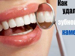 10 простых способов легко удалить зубной камень без визита к зубному врачу