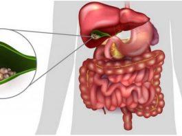 Берегите желчный пузырь — «владыку» вашего тела