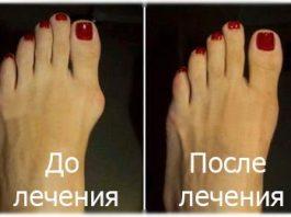 Эти народные способы быстро уберут косточку на ноге. Большая шишка на ноге растает за неделю