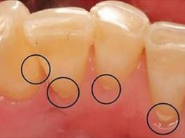 Это работает лучше, чем зубная паста. Избавьтесь от зубного налета, зубного камня и уничтожьте бактерию, вызывающую неприятный запах изо рта