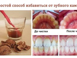 Как избавиться от зубного камня без посещения стоматолога