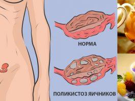 Натуральное средство для лечения поликистоза яичников: никаких гормонов