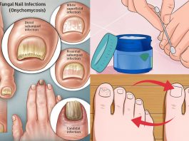 Навсегда удалить грибок с ногтей рук и ног помогут 2 мощных домашних средства