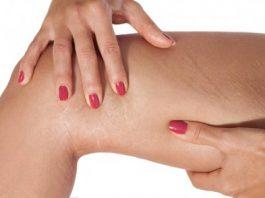 Подруга косметолог посоветовала — масло от растяжек и обвисшей кожи