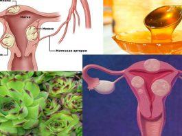 2 ингредиента избавят Вас от кисты и миомы