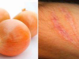 Как легко избавиться от морщин, шрамов и рубцов с помощью обычного лука