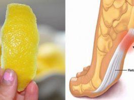Лимонная цедра — мощнейшее средство от боли в суставах. Проверено на себе