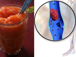 Рецепт для растворения сгустков в крови и устранения варикоза