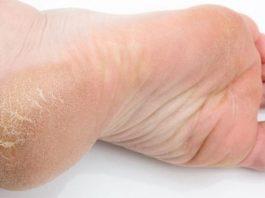 Сильнейший рецепт от глубоких трещин на ногах. Проверено работает