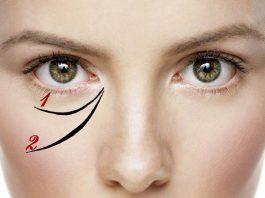 Как стереть «гусиные лапки» и убрать мешки под глазами в домашних условиях