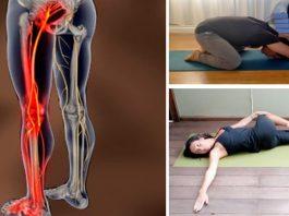 От боли в седалищном нерве можно избавиться за 10 минут