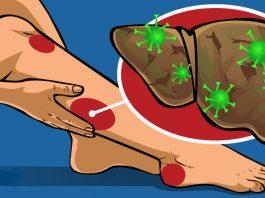 9 признаков того, что ваша печень переполнена токсинами