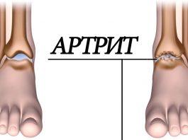 Артрит: 5 продуктов устранят воспаление суставов и избавят от боли
