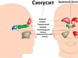 Избавьтесь от воспаления носовых пазух в течение 20 секунд с помощью этого простого метода, и всего одного ингредиента